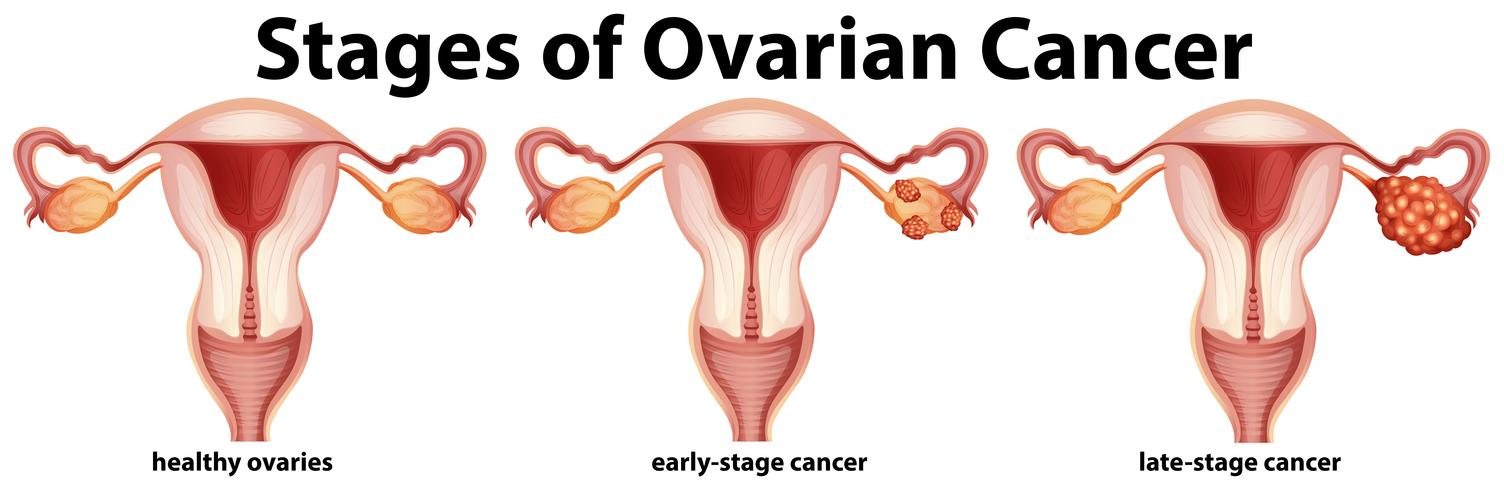 Diagramme montrant les stades du cancer de l'ovaire