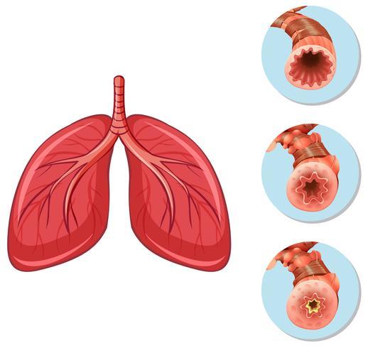 Estágios da via aérea em bloco para os pulmões