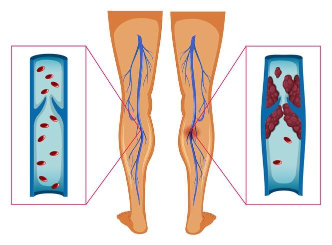 Diagrama que muestra el coágulo de sangre en las piernas humanas
