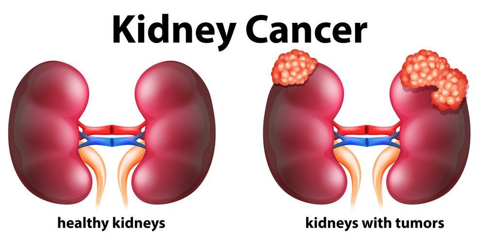 Diagrama mostrando câncer renal em humanos