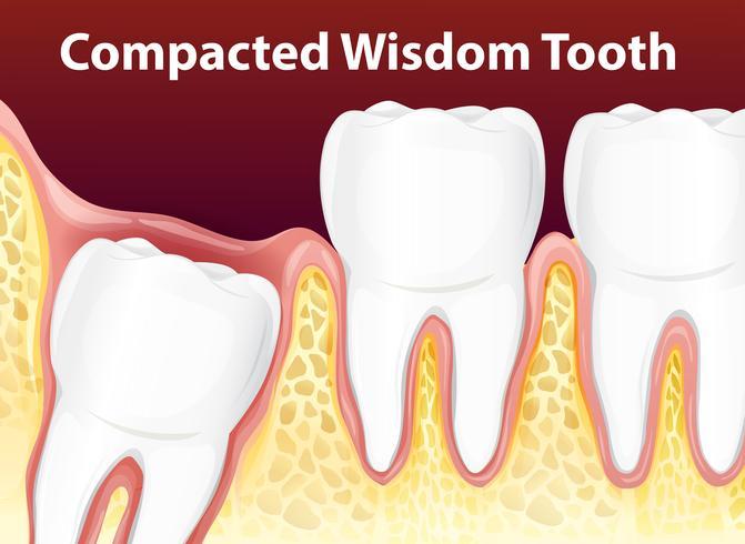 Diagrama de sabiduría compacta diente vector