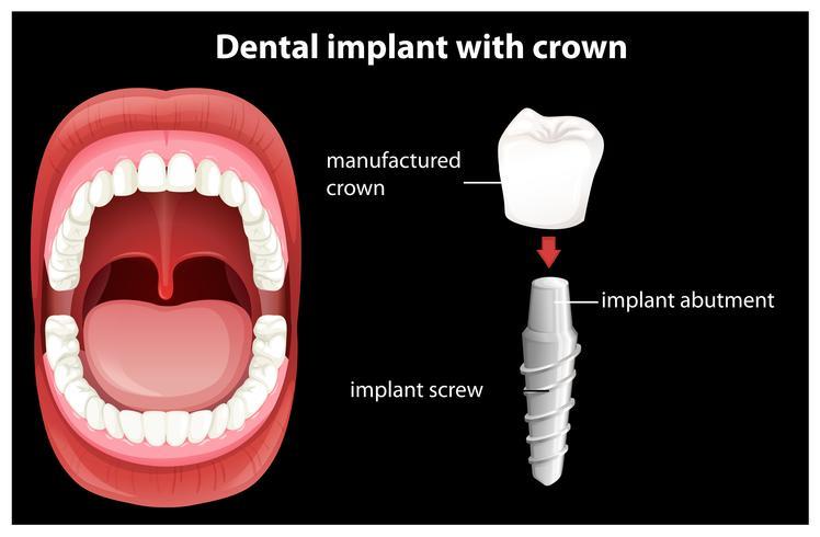 Vector medico de implante dental