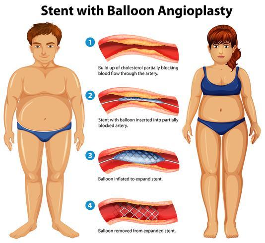 Stent con angioplastica a palloncino