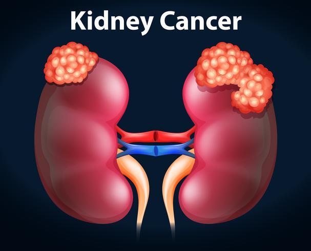 Diagram showing kidney cancer vector