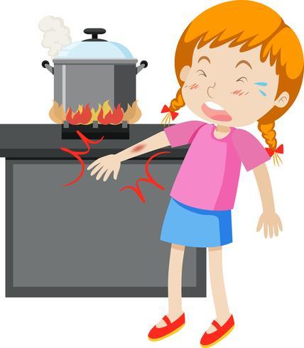 Una ragazza con il braccio bruciato vettore