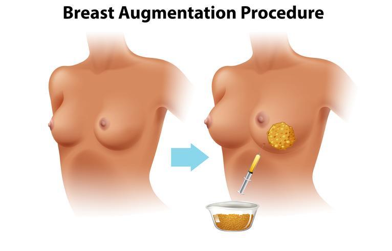 En uppsättning kvinnlig bröstförstoring