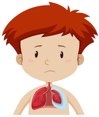 Un niño con enfermedad pulmonar