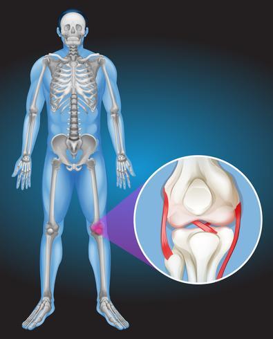 Cuerpo humano y dolor en la rodilla. vector
