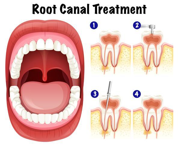 Tandvector van de behandeling van het wortelkanaalbehandeling