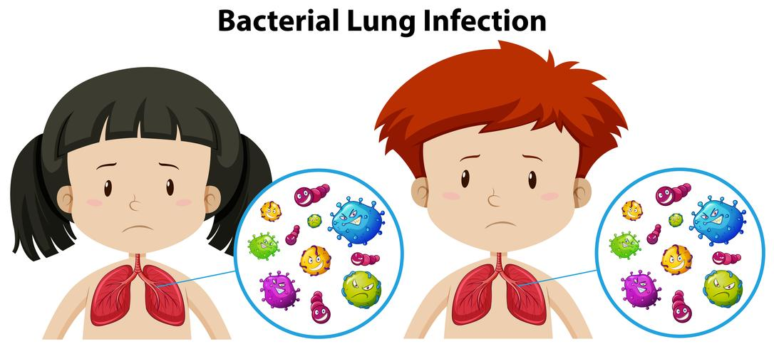 Un conjunto de infección pulmonar bacteriana vector