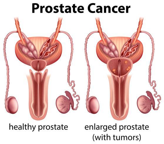 Comparación de salud y cáncer de próstata vector