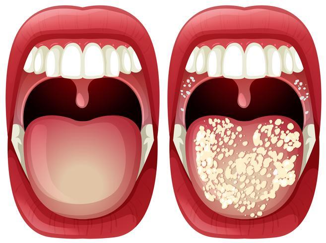 Vettore di bocca sana e virus