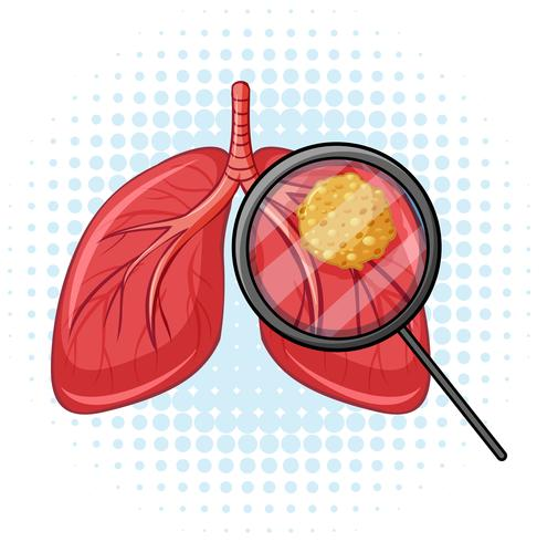 Cancer i människa lungor