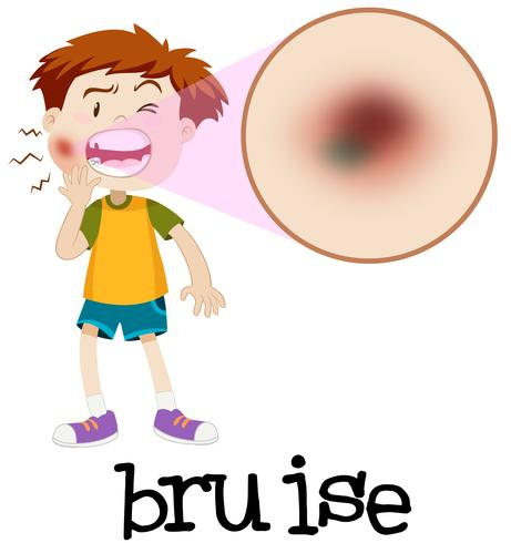 Magnified boy with bruise vector