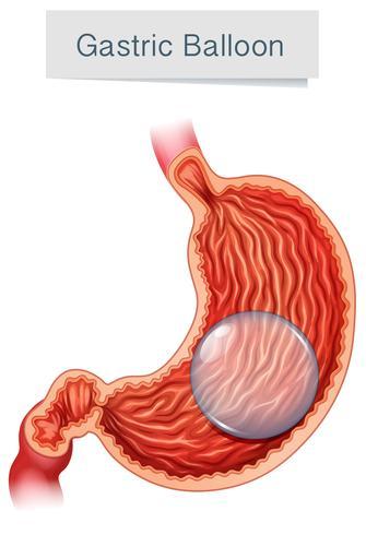 Anatomía médica vector globo gástrico
