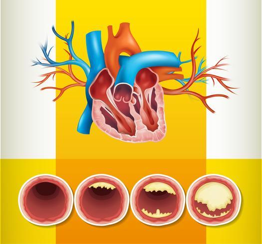 Anatomia del cuore e grasso in vena
