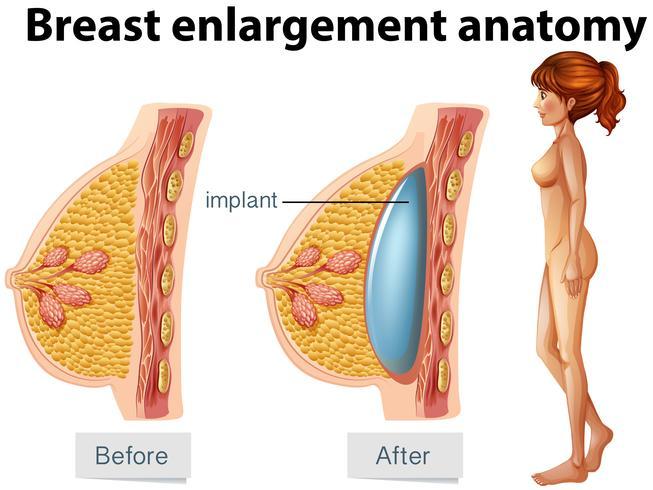Uma anatomia humana do implante mamário