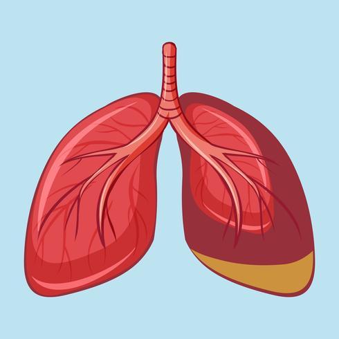 Human Lung with Pleural Mesothelioma vector