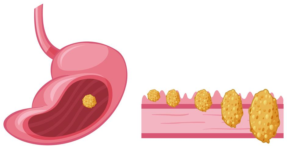 Cancer in human stomach vector
