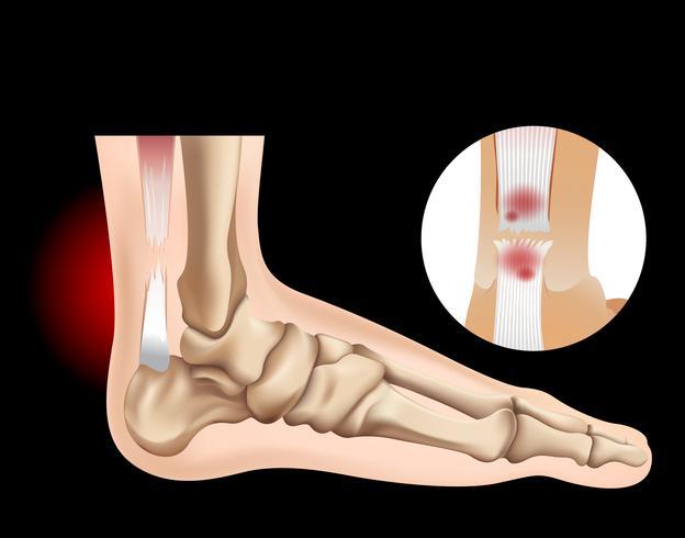 Human foot with tear tendon vector