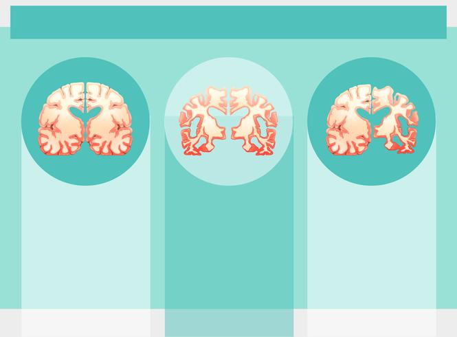 Hintergrundschablone mit menschlichen Gehirnen