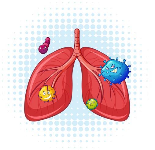 Poumons humains avec le virus