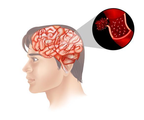 Câncer cerebral em humanos