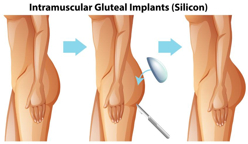 Intramuskuläre Glutealimplantate auf weißem Hintergrund