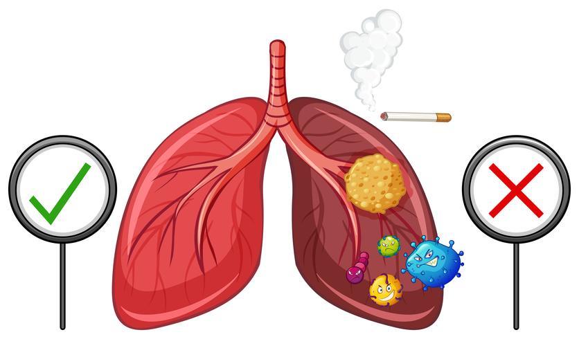 Diagram met gezonde en ongezonde longen