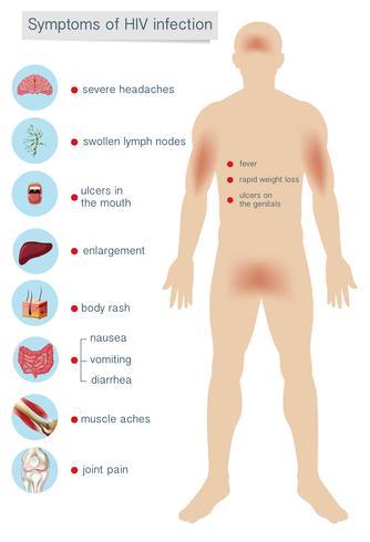 Sintomas da anatomia humana da infecção pelo HIV