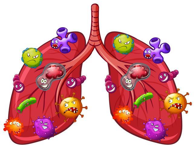 Um vetor de bactérias pulmonares