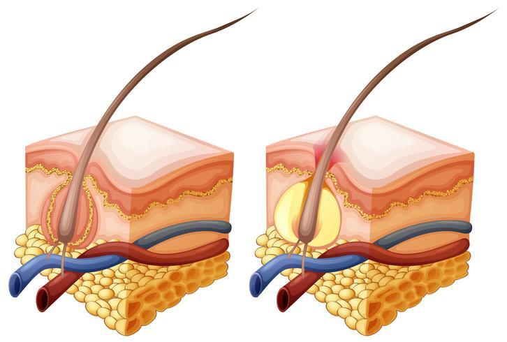 Diagrama que muestra el pelo y debajo de la piel humana.
