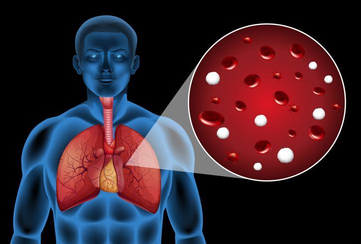 Células magnificadas en los pulmones.