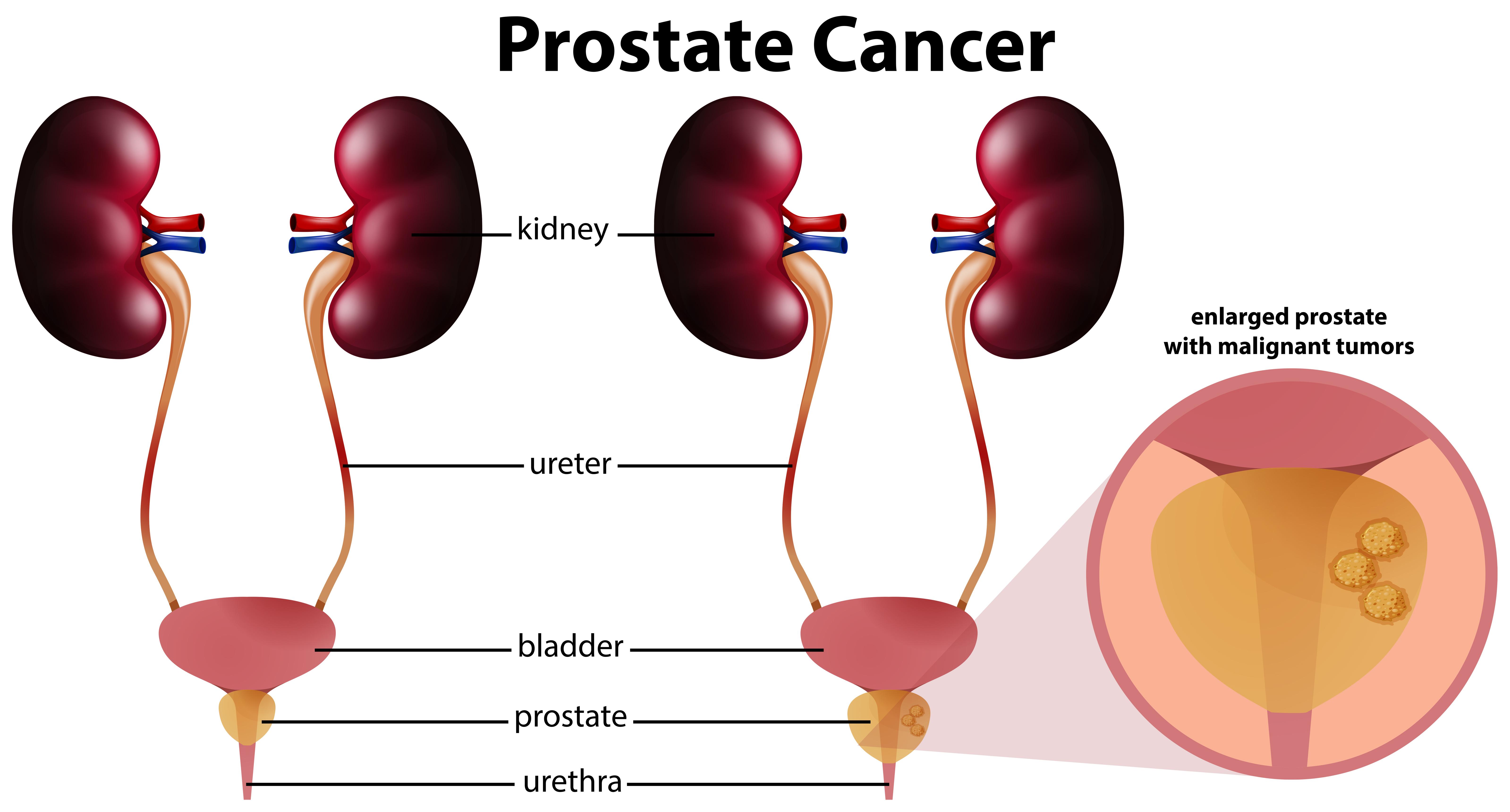 Adenom de prostata: cauze, simptome, complicatii, tratament | Prostaffect сumpără