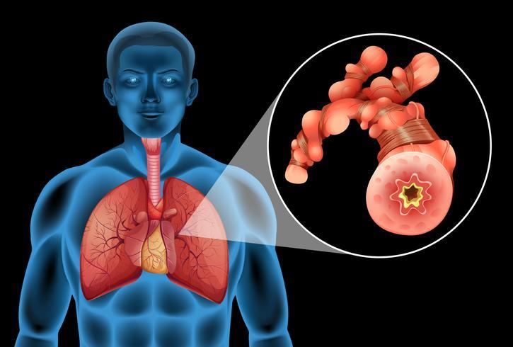 Menselijke man met tumor in de longen