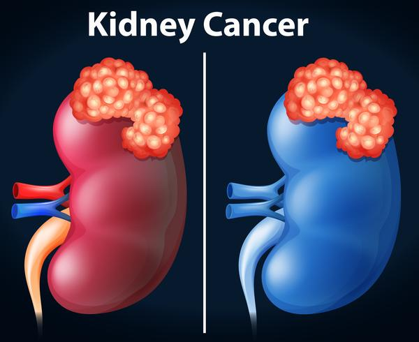 Two diagram of kidney cancer vector