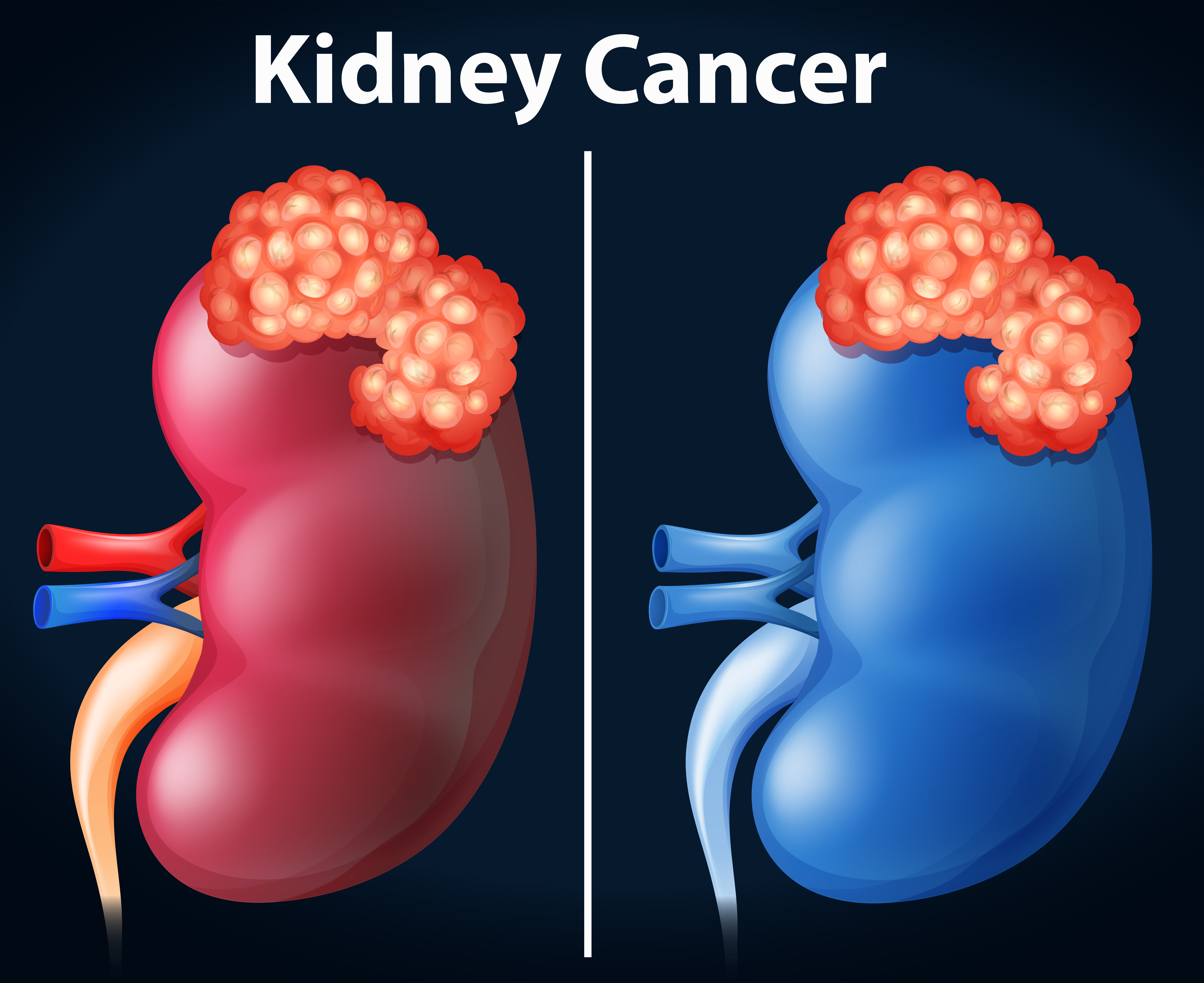 Two Diagram Of Kidney Cancer