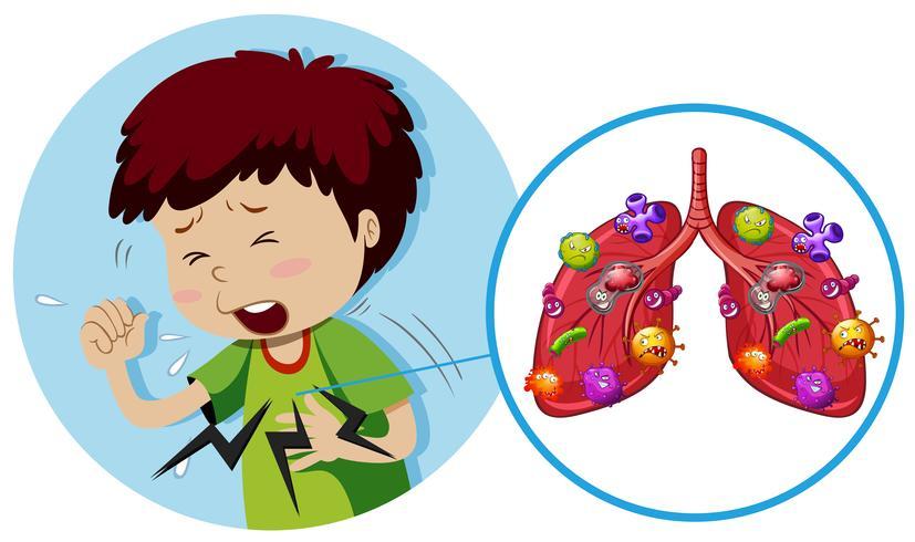 Chico joven con bacterias en los pulmones vector