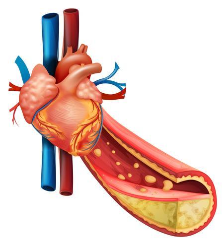 Diagramma che mostra il cuore umano e le vene grasse