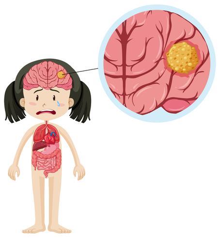 Kleines Mädchen und Gehirnkrebs