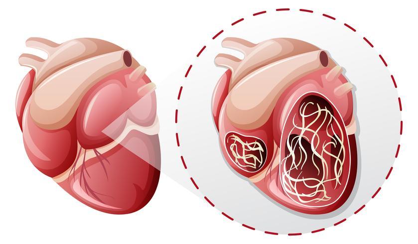concepto de gusano de corazón magnificado