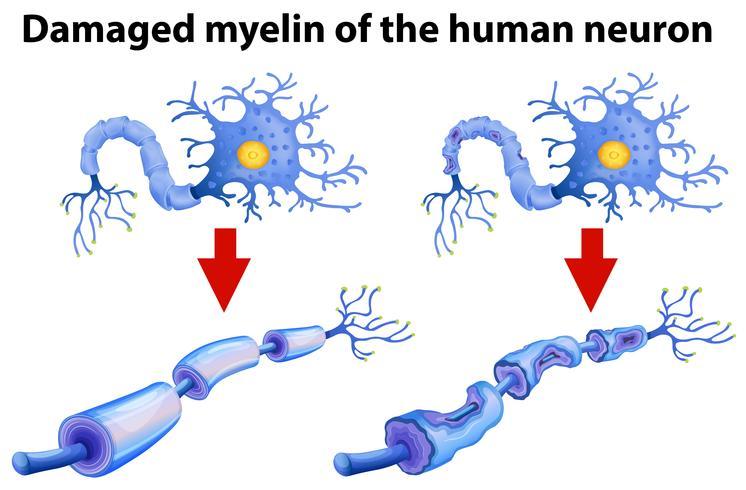 Beschädigtes Myelin des menschlichen Neurons