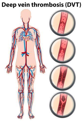Anatomie der tiefen Venenthrombose