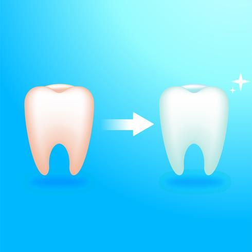 Smutsig och ren tand. Behandling hos tandläkaren. Ömma tänder. Vektor realistisk illustration
