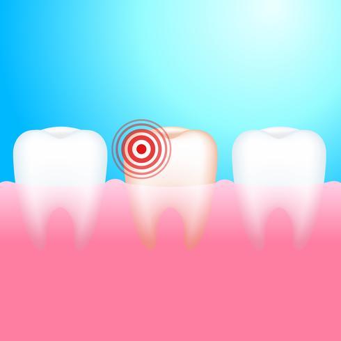 Mal di denti. Un dente con carie dentale e dolore. Illustrazione vettoriale realistico