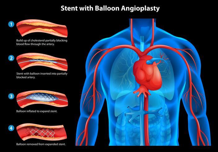 Stent com angioplastia com balão