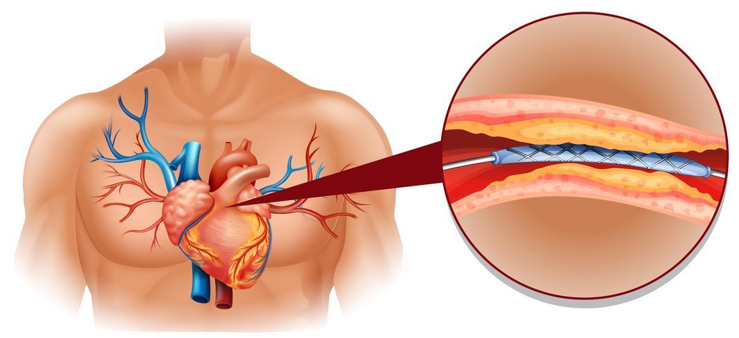 Diagrama do coração humano com tubo de balão