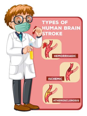 Docteur et schéma montrant des accidents cérébraux humains