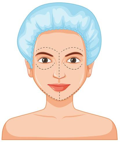 Botox cutané dame vecteur