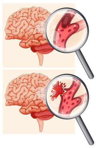 Cerveau humain et AVC hémorragique